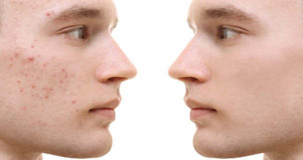 Face with and without scarring
