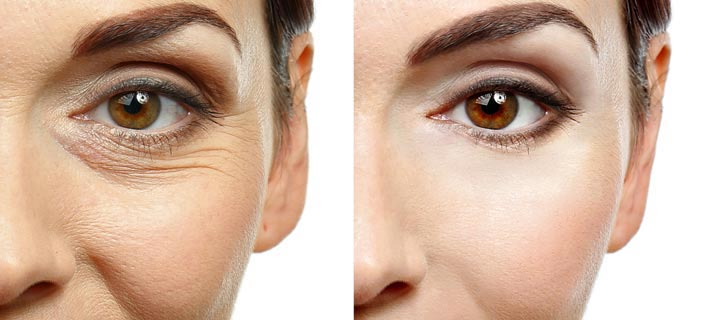 Woman before and after wrinkle reduction